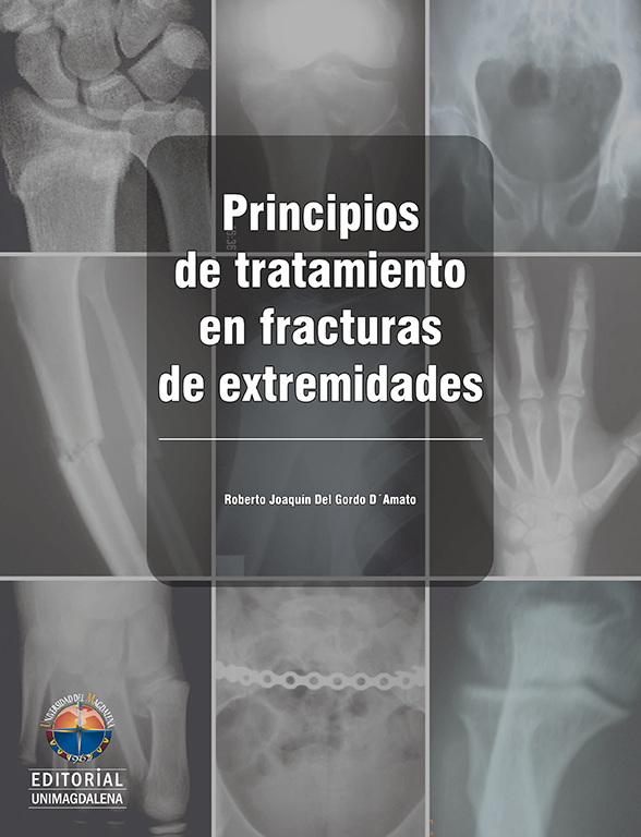 Principles of Treatment In Limb Fractures